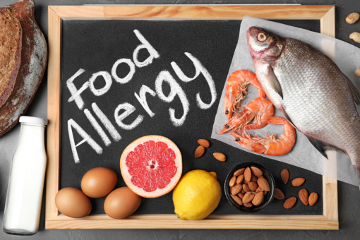 The Common Food Allergies You Should Know About